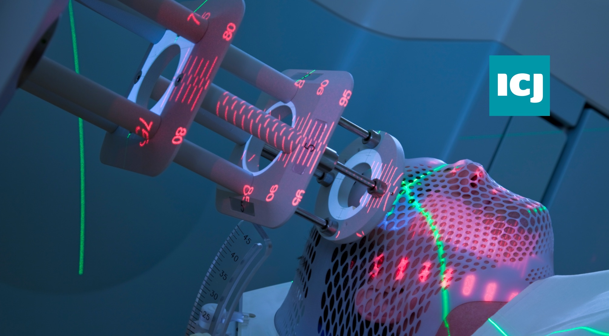 Single dose radiotherapy could replace postoperative daily hospital visits