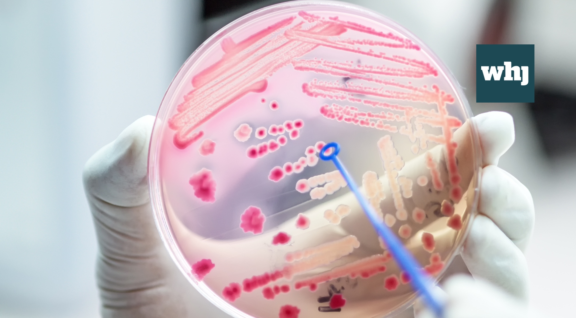 The UK leads the fight against antimicrobial resistance