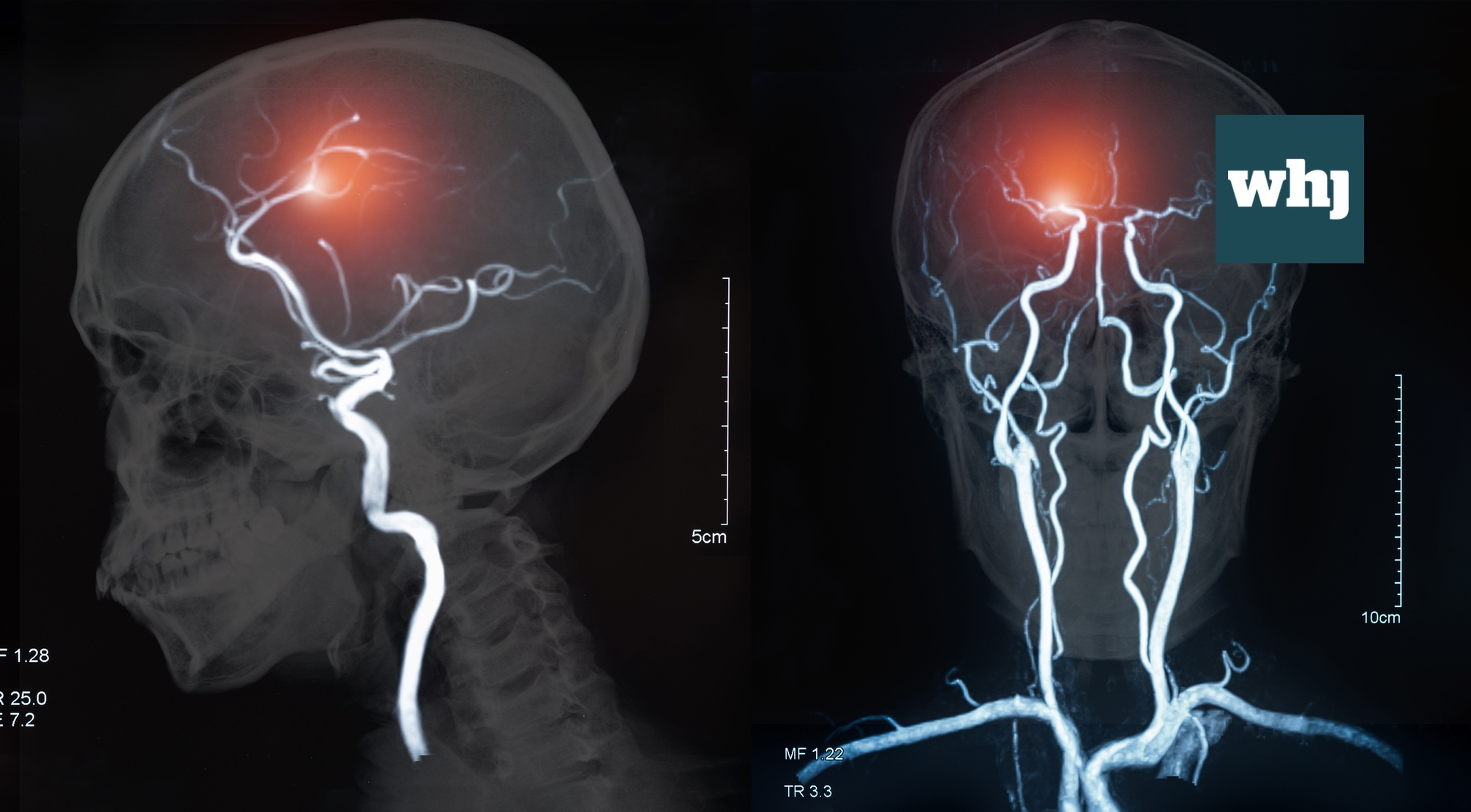 World Stroke Organisation announces global strategy to cut stroke rates